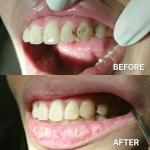 class3 Dental Composite Restoration